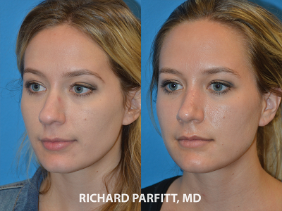 rhinoplasty nose surgery before and after case