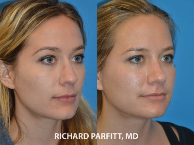 nose surgery female before and after