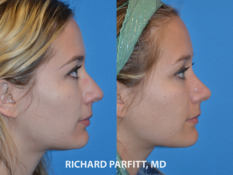 rhinoplasty patient after surgery