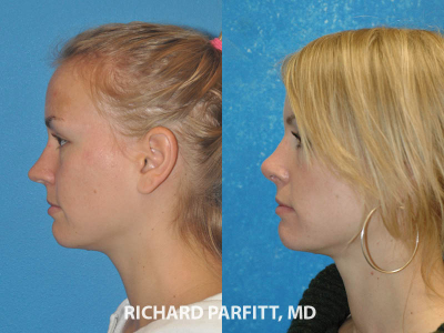 20 year old nose job female before and after side view