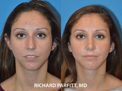 female rhinoplasty before and after surgery