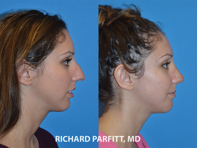 young female rhinoplasty before and after