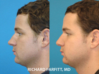 nose job male plastic surgery before and after side view