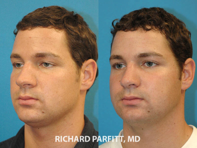 nose job before and after male oblique view Madison WI plastic surgeon