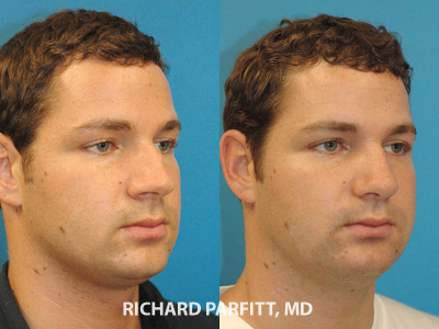 Midwest facial plastic surgeon rhinoplasty nose surgery before and after