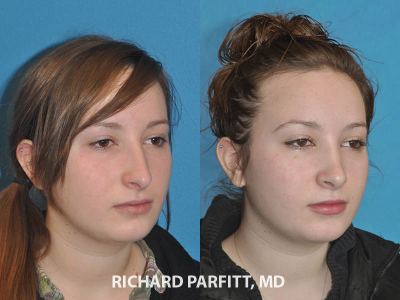 nose surgery young female before and after rhinoplasty