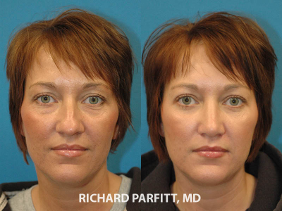 40 year old female nose cosmetic procedure Madison plastic surgery