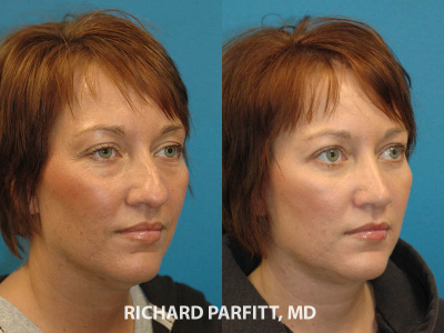 rhinoplasty surgery before and after Madison cosmetic surgery