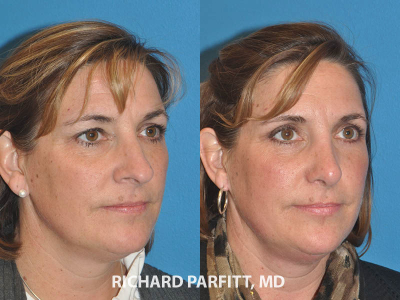 nose plastic surgery before and after WI