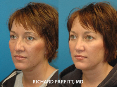 40 year old female nose cosmetic procedure Appleton plastic surgery