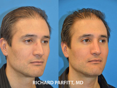male plastic surgery rhinoplasty patient before and after photo WI