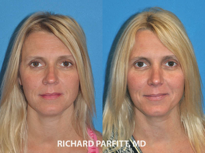 rhinoplasty nose surgery before and after female patient Madison plastic surgery