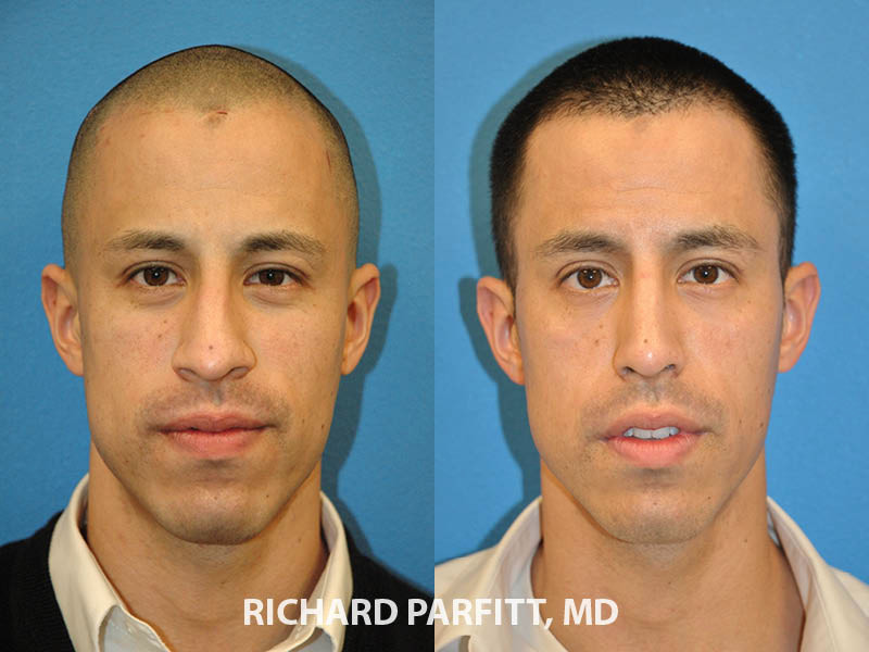 rhinoplasty male patient before and after front view