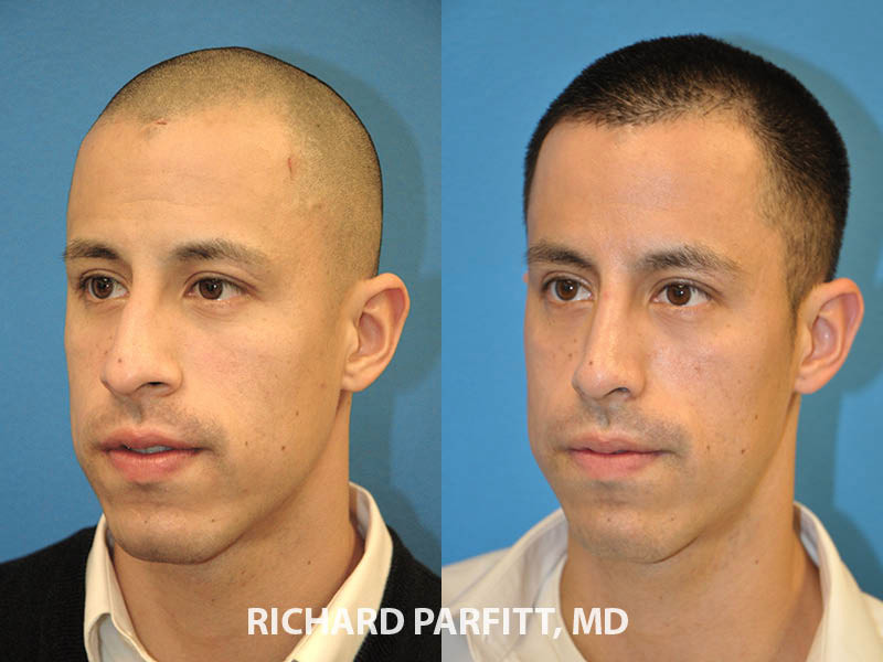 rhinoplasty male patient before and after oblique view