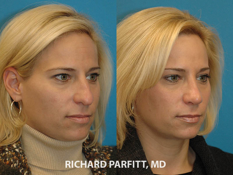 before and after nose job rhinoplasty expert