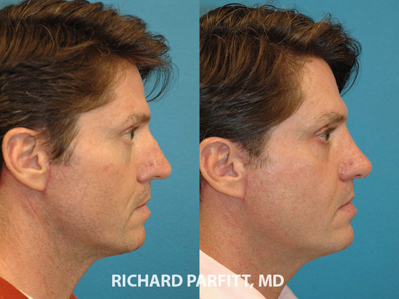 male nose job Middleton Wisconsin before and after side view