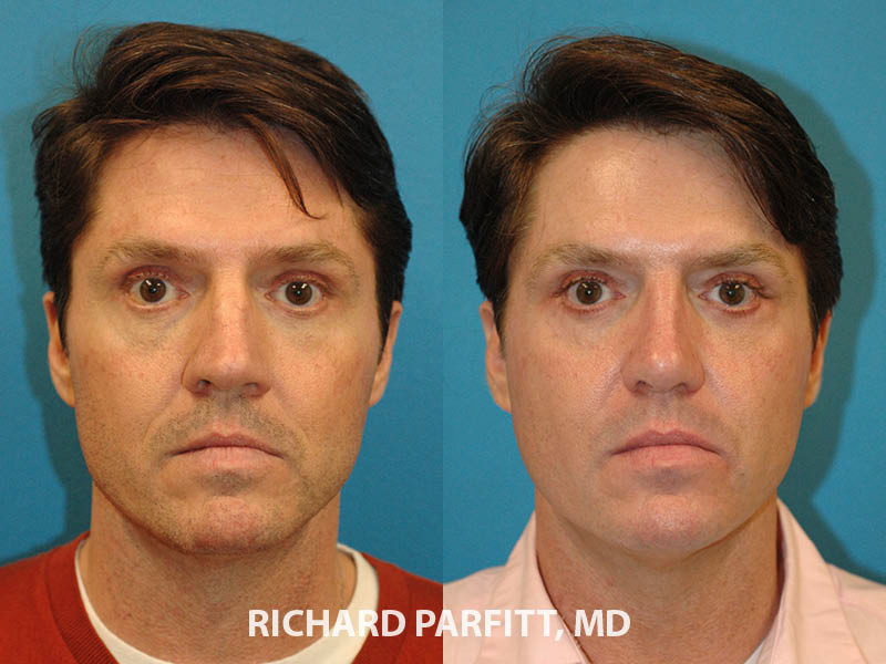 best rhinoplasty surgeon Appleton WI