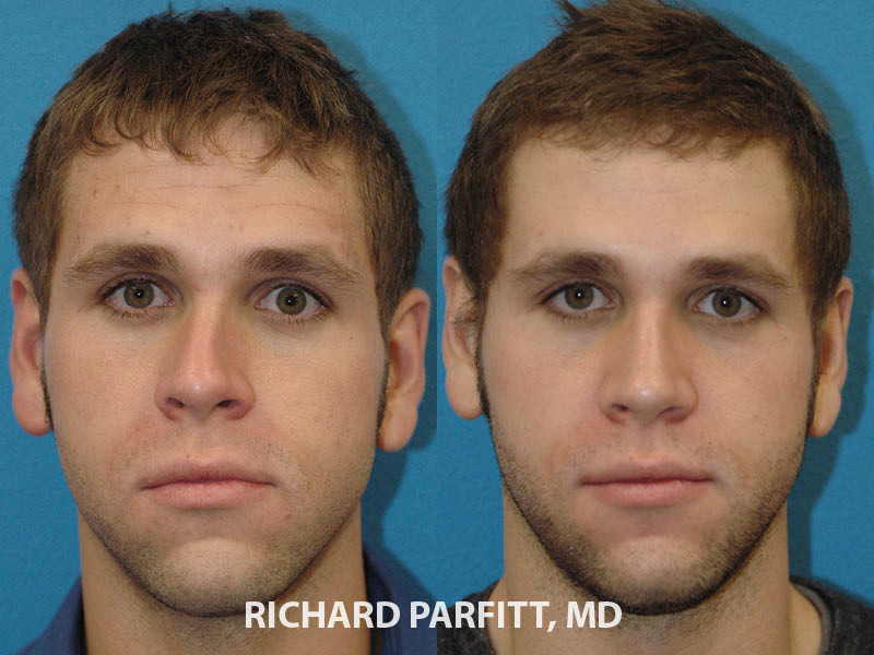 Wisconsin male plastic surgery rhinoplasty before and after