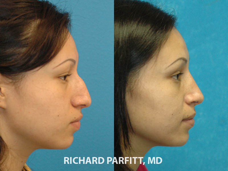 nose surgery before and after female Middleton WI
