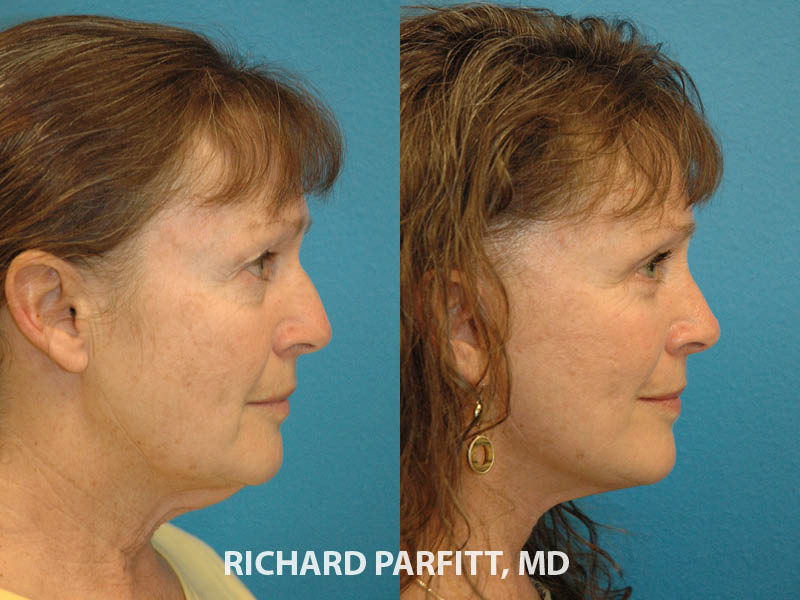 nose plastic surgery before and after Appleton