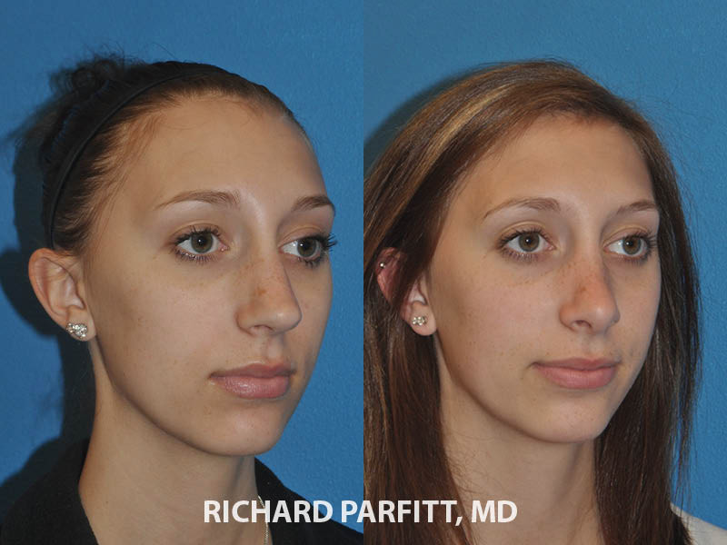 nose plastic surgery before and after Milwaukee