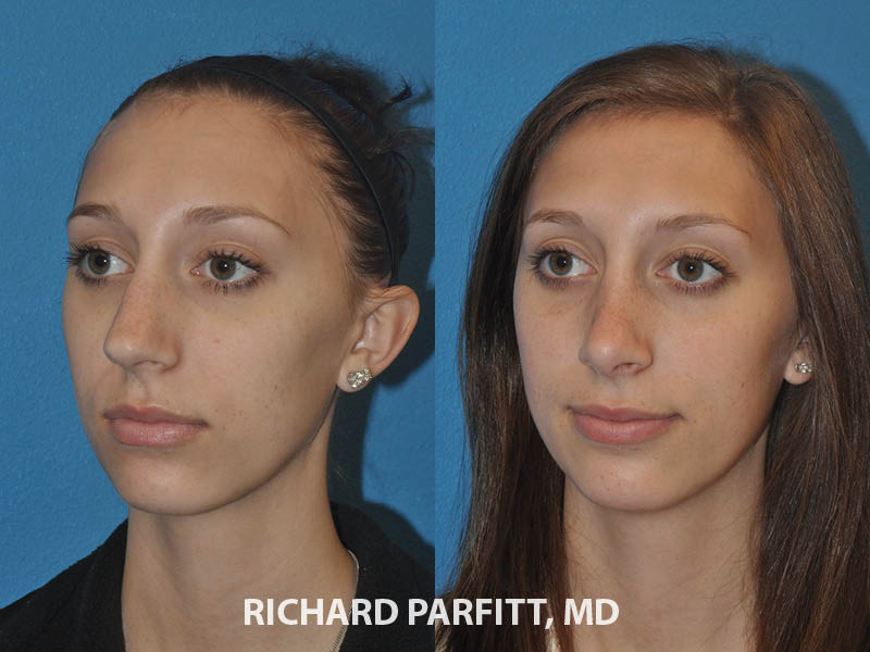 nose surgery before and after young female Appleton WI