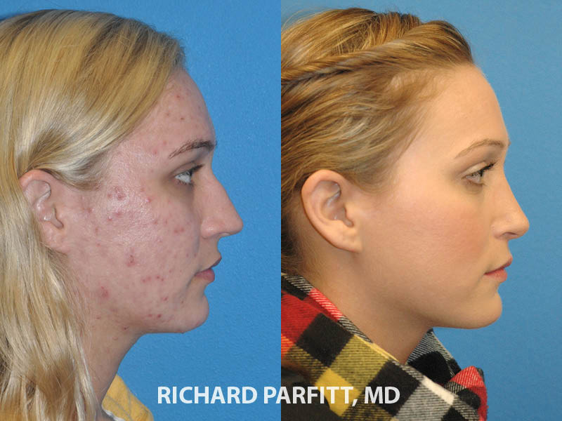 rhinoplasty Obagi Blue Peel female before and after WI