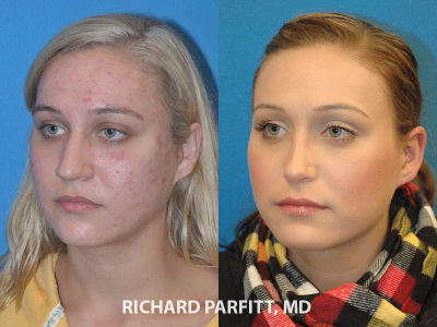 nose job before and after female Chicago IL plastic surgery