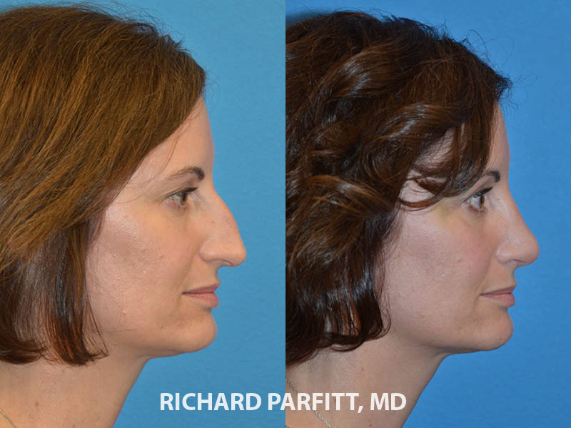 before and after nose job best facial plastic surgeon rhinoplasty WI