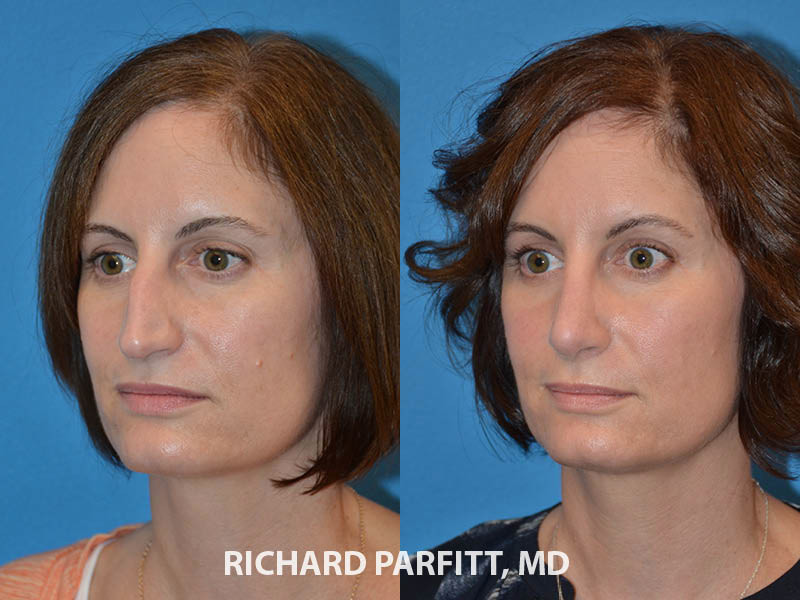 nose job before and after female Madison WI plastic surgery