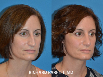 best plastic surgeon Madison WI rhinoplasty