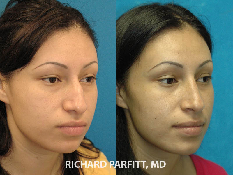 nose job expert Chicago IL
