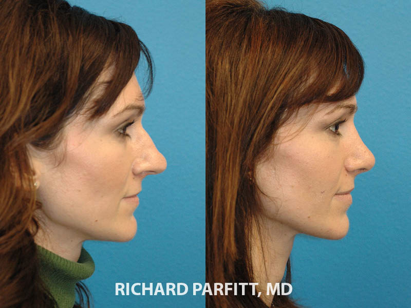 nose job before and after female Madison plastic surgery
