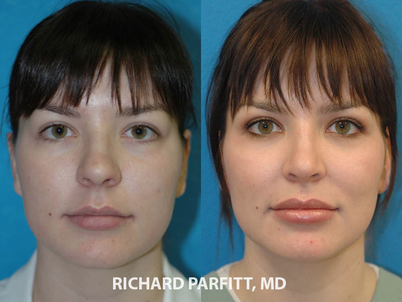 female nose surgery before and after Chicago IL