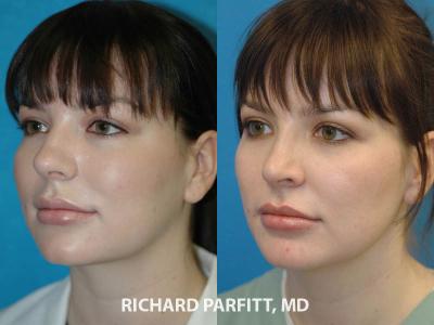 best plastic surgeon Appleton WI rhinoplasty