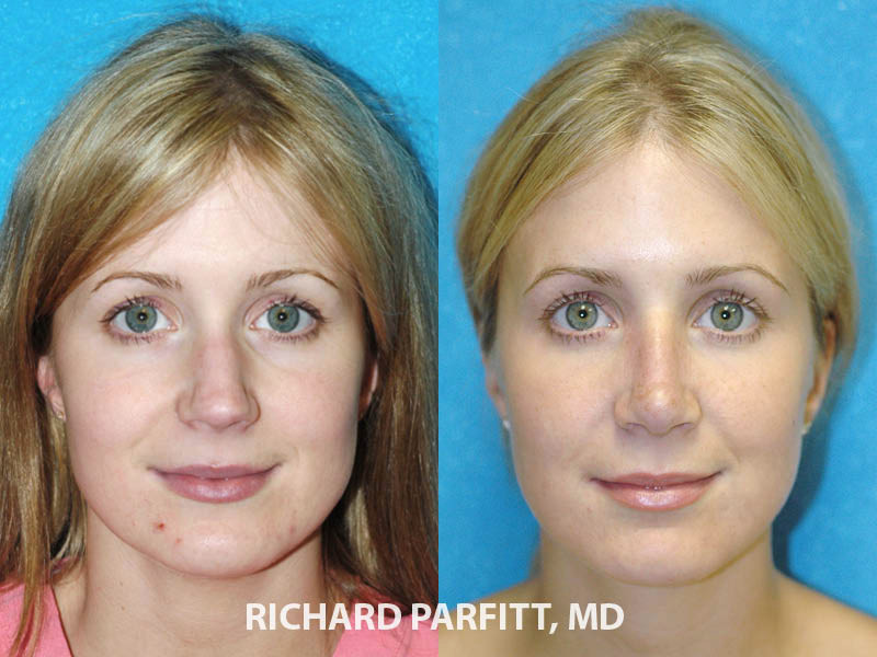 nose rejuvenation female before and after Milwaukee WI