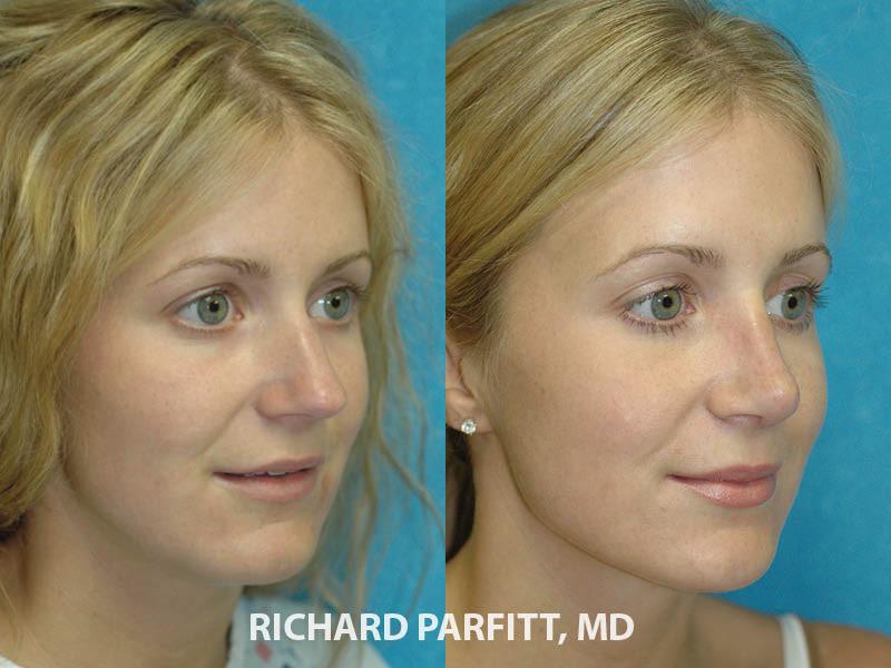 best plastic surgeon Green Bay WI rhinoplasty