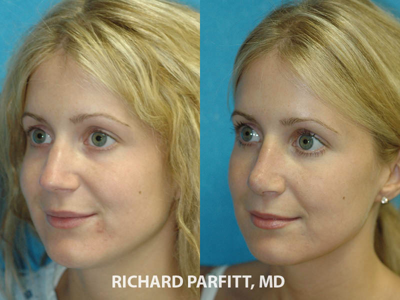 nose job expert Appleton WI