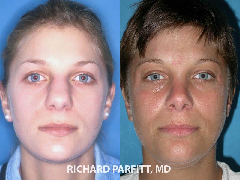 best plastic surgeon Middleton WI rhinoplasty