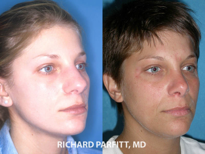 nose surgery female before and after cosmetic procedure