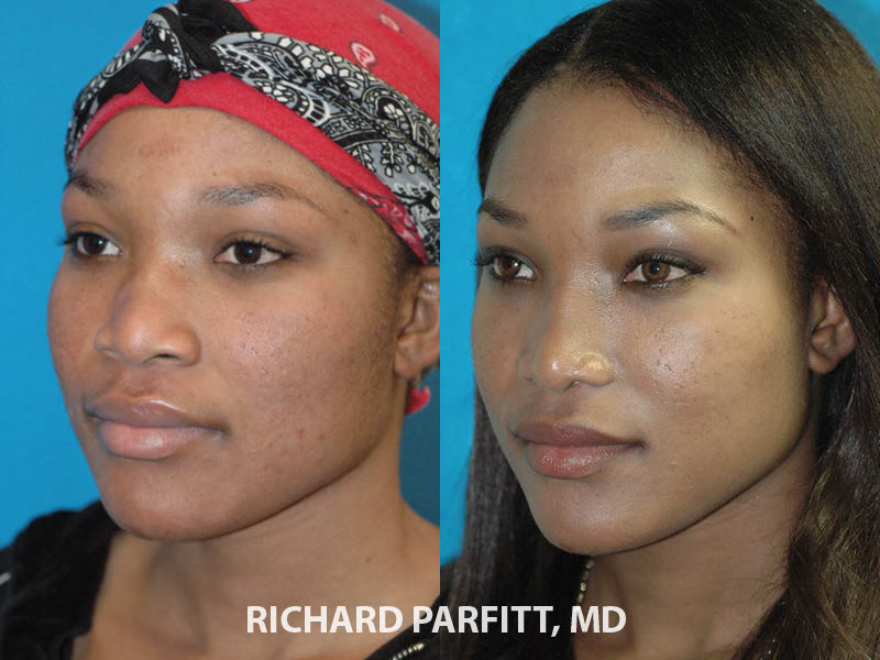 ethnic rhinoplasty before and after nose surgery WI