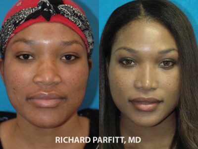 ethnic rhinoplasty nose surgery before and after female Madison plastic surgery