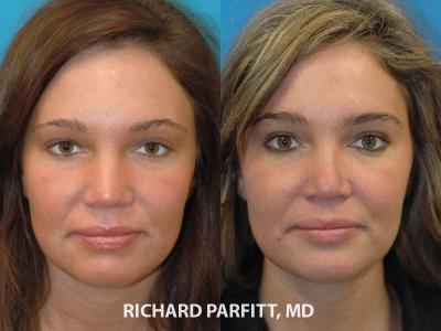 best rhinoplasty surgeon Madison WI