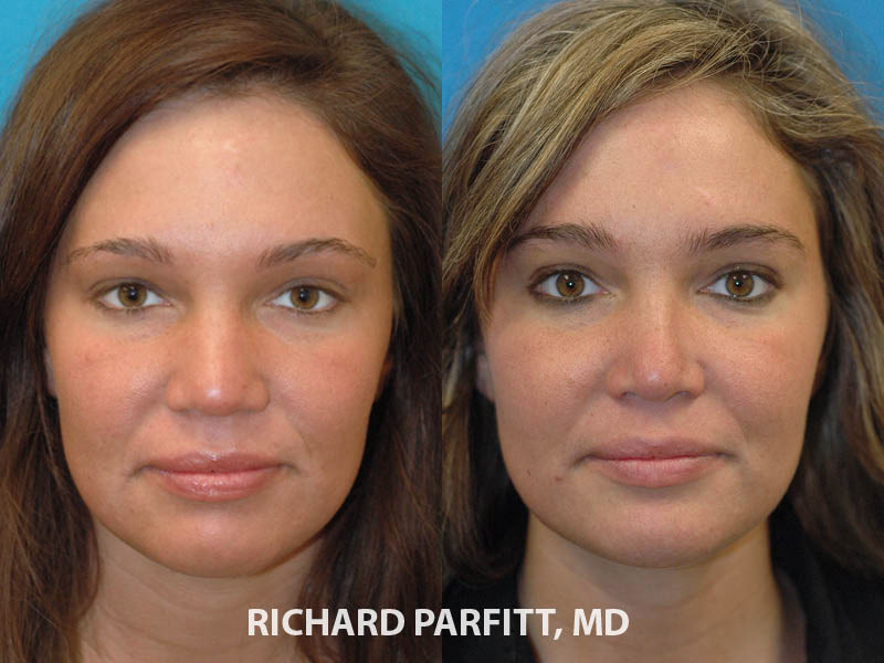 best rhinoplasty surgeon Madison WI