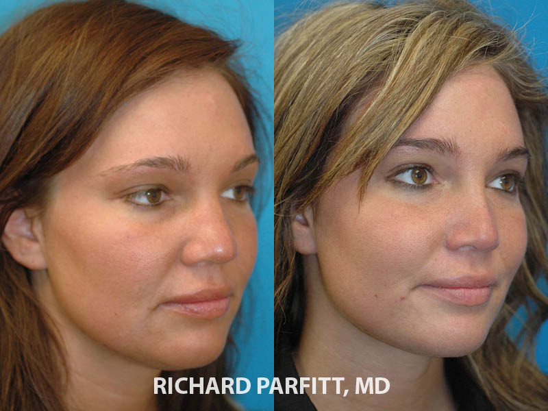 facial plastic surgery rhinoplasty before and after oblique view
