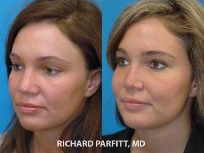 female rhinoplasty before and after nose surgery Minneapolis MN