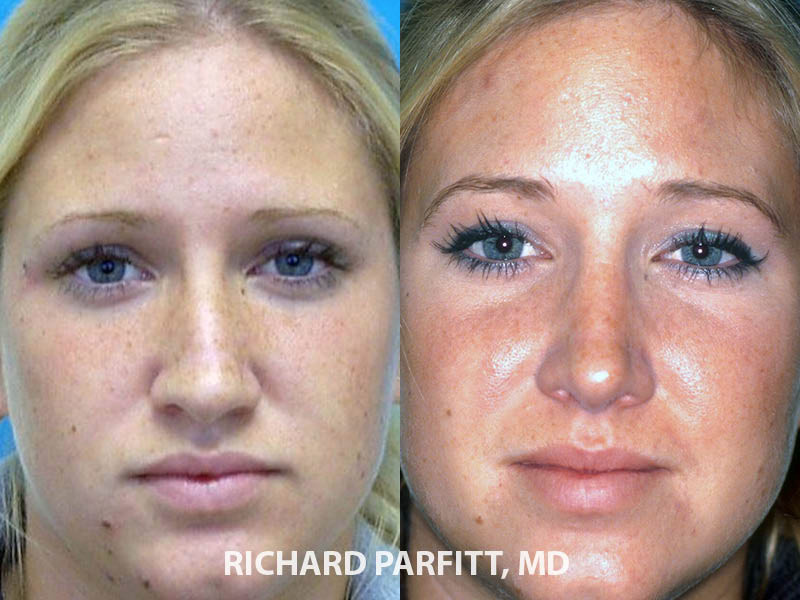 rhinoplasty plastic surgery before and after Appleton plastic surgeon