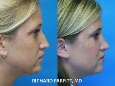 best rhinoplasty surgeon Chicago IL