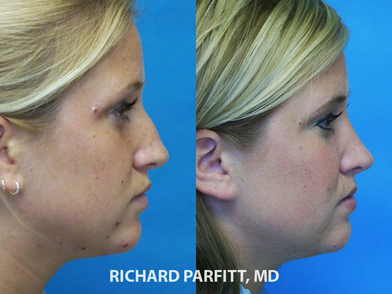 best rhinoplasty surgeon Chicago IL