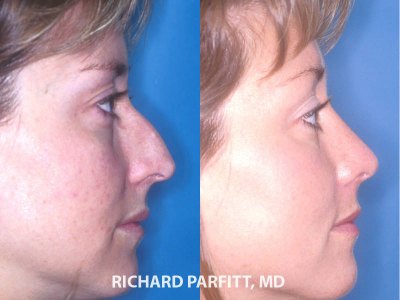 rhinoplasty surgery before and after Chicago IL cosmetic surgery